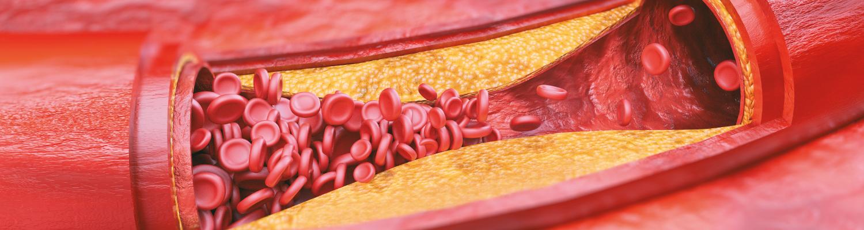Revilab SL 01 + «Челохарт»: сердечно-сосудистая система под защитой